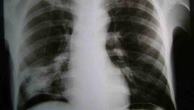 Quatre mois pour soigner la tuberculose latente