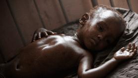 Charge des maladies : l'Afrique francophone subit une triple peine