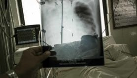 Paredes suaves en las casas para pulmones más saludables