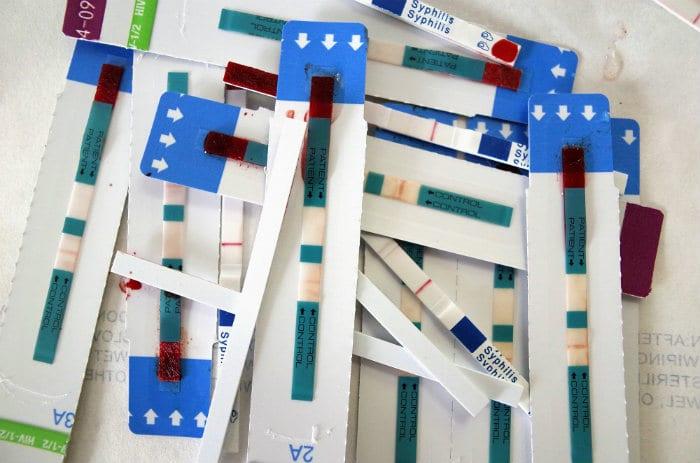 Lagunas de datos esconden brechas de VIH