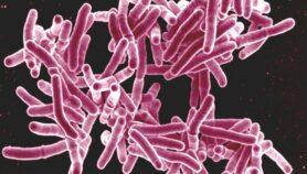 Sinergia entre VIH y TB bajo la lupa