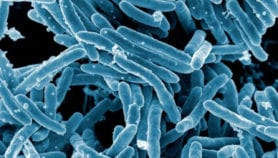 Alerta en la región por tuberculosis resistente a medicamentos