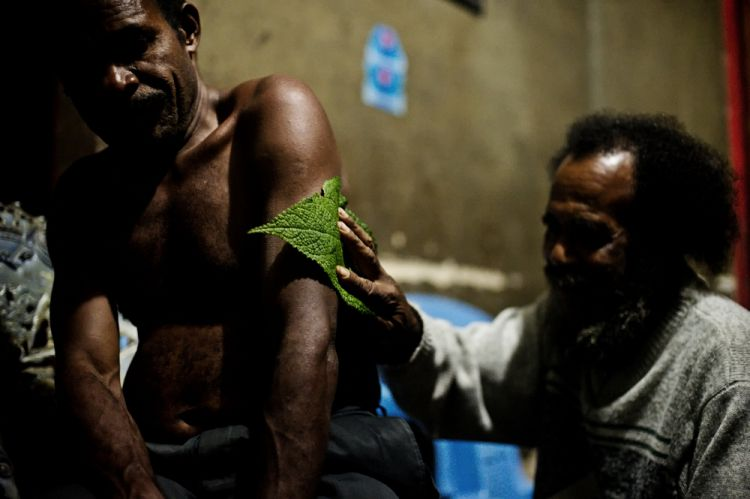 A Mooi man applies a medicinal plant to a man suffering with malaria