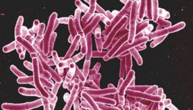 TB cases falling too slowly to hit 2020 targets