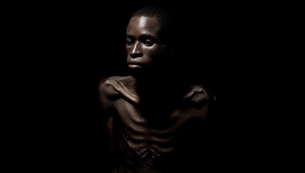 HIV AIDS Victim - MAIN