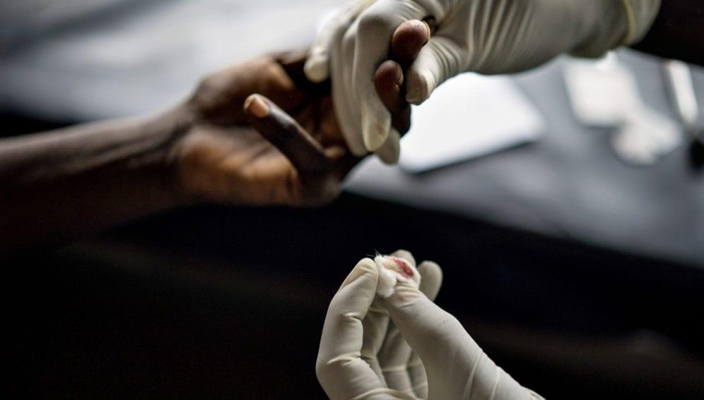 Ebola pinprick test