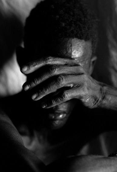 Man suffering from Kala Azar