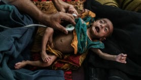 Starving Yemenis resort to eating tree leaves