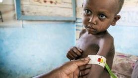 Undernutrition rampant in urban Sub-Saharan Africa