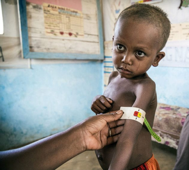 young boy suffering from malnutrition